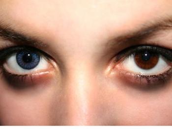 Что цвет глаз расскажет о твоем здоровье