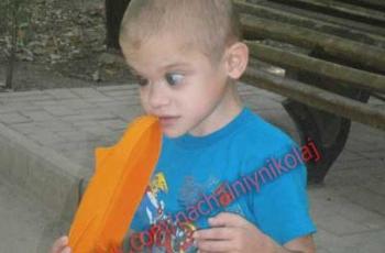 Тяжелобольному ребенку с жуткой судьбой нужна помощь